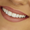 easy ways at home to whiten teeth