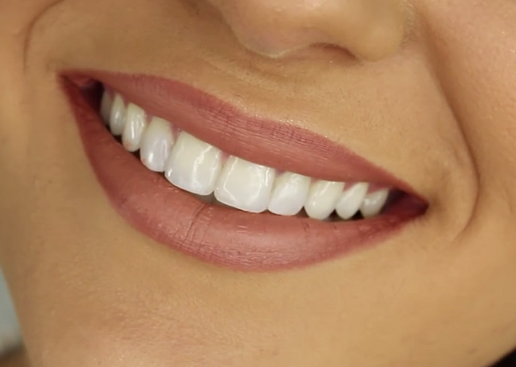 How To Whiten Teeth At Home Without Baking Soda Best House