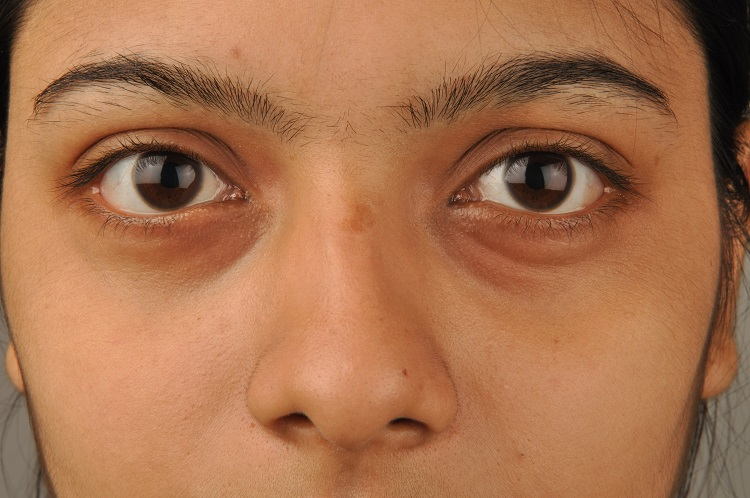 easy ways to get rid of dark circles permanently