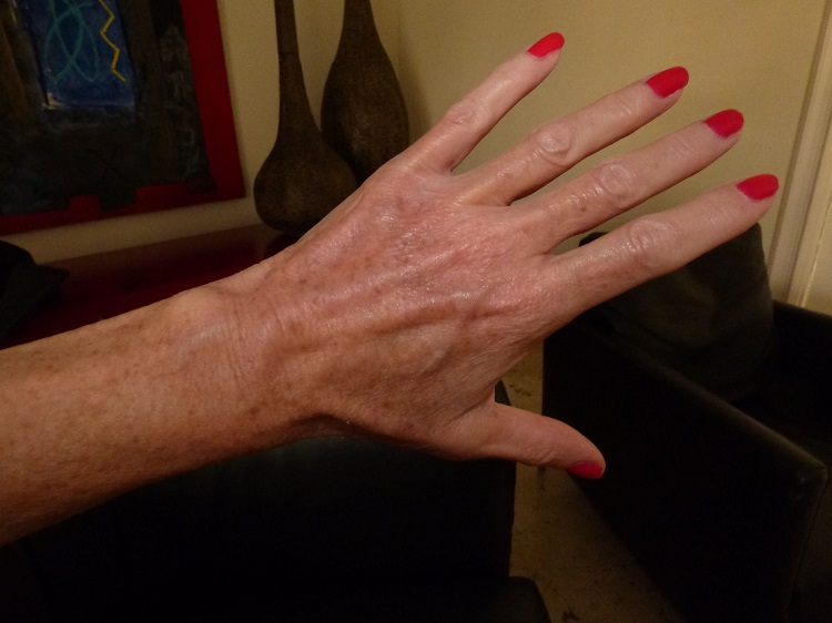 8 Easy Ways to Get Rid of Veins on Hands