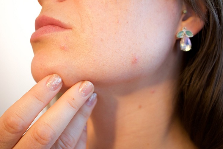 easy ways to shrink a cystic pimple
