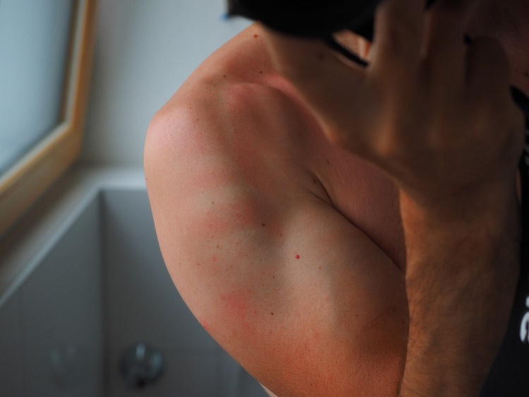 easy ways to stop pain and inflammation