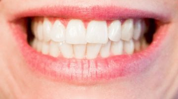 13 Easy Ways To Prevent Tooth Decay And Heal Cavities