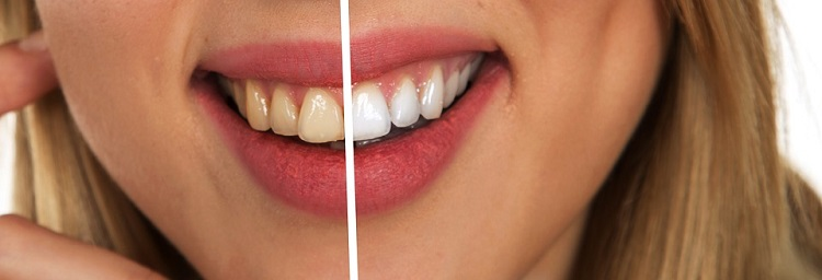 ways to get rid of teeth sensitivity after whitening-soothe sensitive teeth naturally