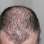 ways to hide thinning hair and bald spots
