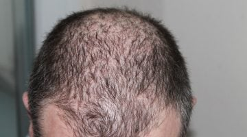 10 Easy Ways to Cover Bald Patches from Alopecia