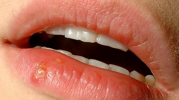 ways to prevent cold sores from the sun