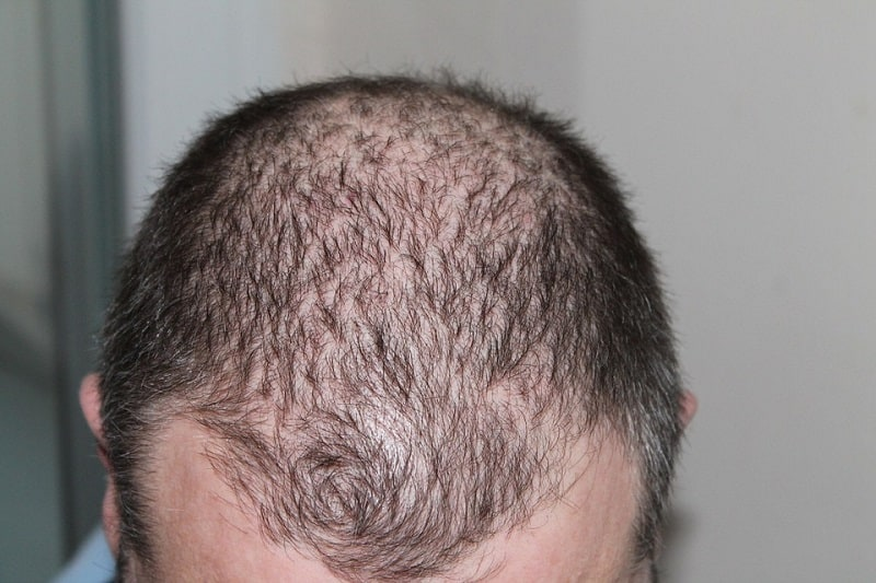 ways to stop a receding hairline